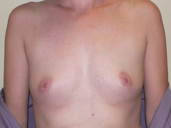 Breast Augmenation before 943769