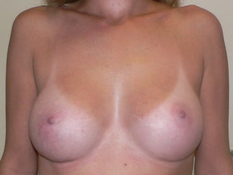 Breast Augmenation after 943769