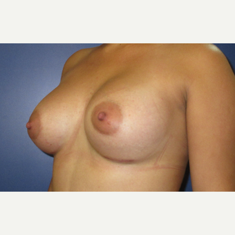 25-34 year old woman treated with Breast Augmentation after 3695253