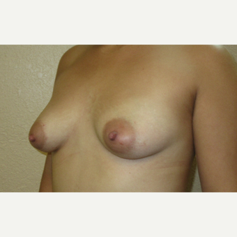 25-34 year old woman treated with Breast Augmentation before 3695253