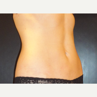 45-54 year old woman treated with SmartLipo MPX after 3738744