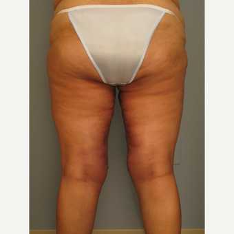 25-34 year old woman treated with Thigh Lift after 2976676