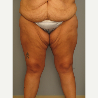 25-34 year old woman treated with Thigh Lift before 2976676