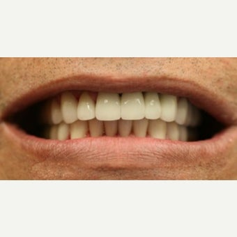 55-64 year old man treated with Porcelain Veneers after 2461313