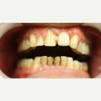55-64 year old man treated with Porcelain Veneers before 2461313