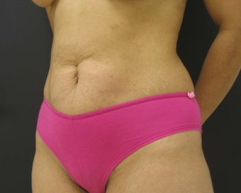 Tummy Tuck with Liposuction before 302129