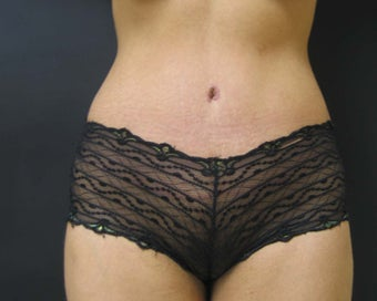 Tummy Tuck with Liposuction 302129