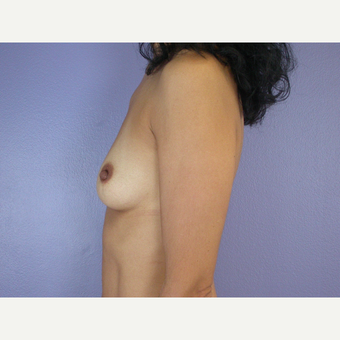 25-34 year old woman treated with Breast Augmentation before 3278096
