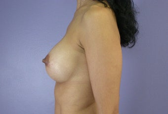25-34 year old woman treated with Breast Augmentation after 3278096