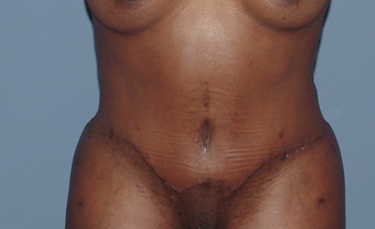 Tummy tuck (abdominoplasty) redo (secondary) after 845767