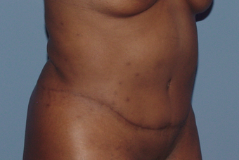 Tummy tuck (abdominoplasty) redo (secondary) 845767