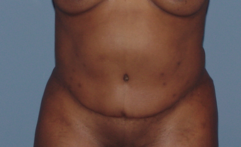 Tummy tuck (abdominoplasty) redo (secondary) before 845767