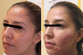 35-44 year old woman treated with Restylane before 3670647