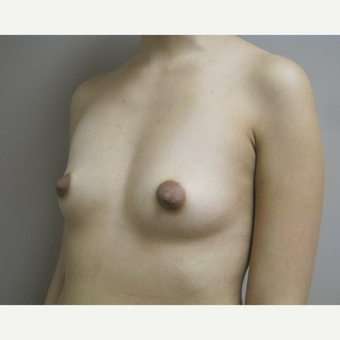 Breast Augmentation before 3530489