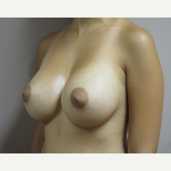 Breast Augmentation after 3530489