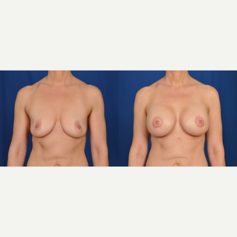 35-44 year old woman treated with Breast Lift with Implants before 3538128