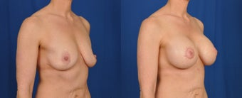 35-44 year old woman treated with Breast Lift with Implants after 3538128