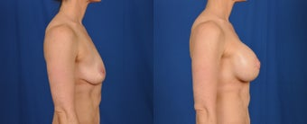 35-44 year old woman treated with Breast Lift with Implants 3538128