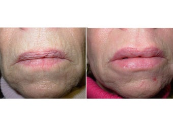CO2 Laser Resurfacing and Lip Augmentation