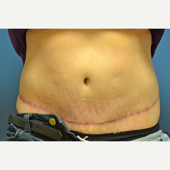 35-44 year old woman treated with Tummy Tuck after 3258712