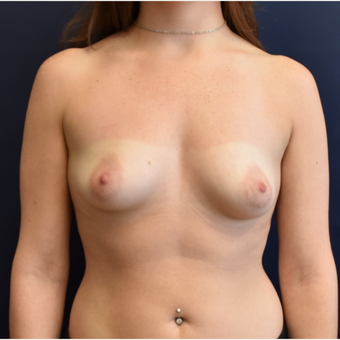 25-34 year old woman treated with Sientra Breast Implants before 3213932