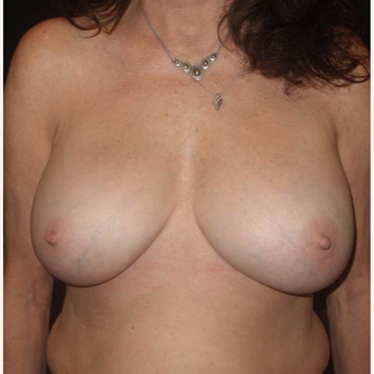 55-64 year old woman treated with Breast Implant Revision after 3458118