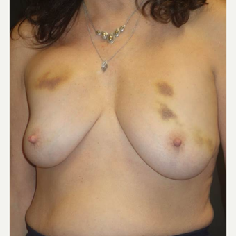 55-64 year old woman treated with Breast Implant Revision before 3458118