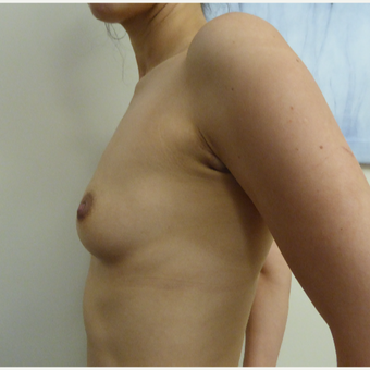 25-34 year old woman treated with Breast Augmentation before 3375582