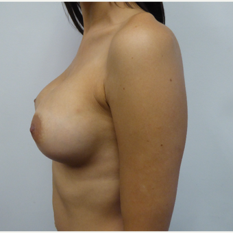 25-34 year old woman treated with Breast Augmentation after 3375582