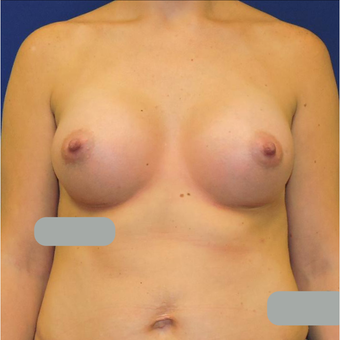 25-34 year old woman treated with Breast Augmentation after 3424307
