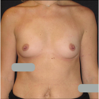 25-34 year old woman treated with Breast Augmentation before 3424307
