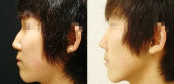 Rhinoplasty w/ Osteotomy + Tipplasty before 963004