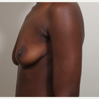 25-34 year old woman treated with Breast Implants before 3404797