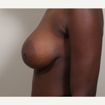 25-34 year old woman treated with Breast Implants after 3404797
