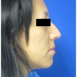 Rhinoplasty before 2993727