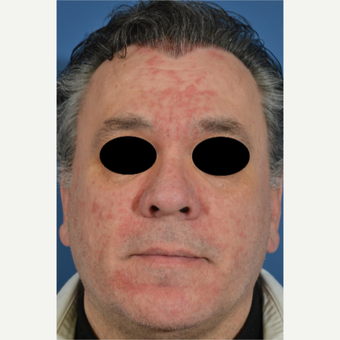 45-54 year old man treated with Rosacea Treatment before 2994313