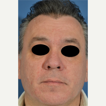 45-54 year old man treated with Rosacea Treatment after 2994313