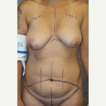 25-34 year old woman treated with Mommy Makeover before 3321825