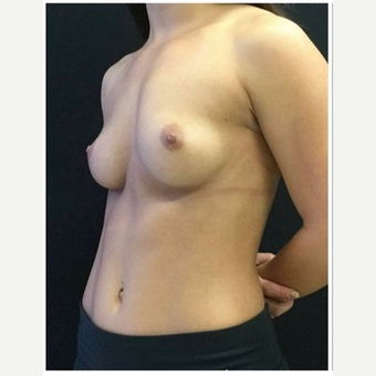 25-34 year old woman treated with Breast Implants before 3103457