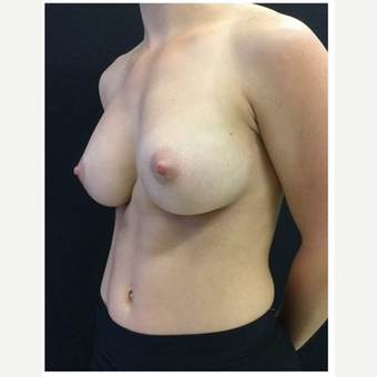 25-34 year old woman treated with Breast Implants after 3103457