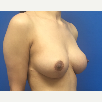 25-34 year old woman treated with Breast Reduction after 3091335