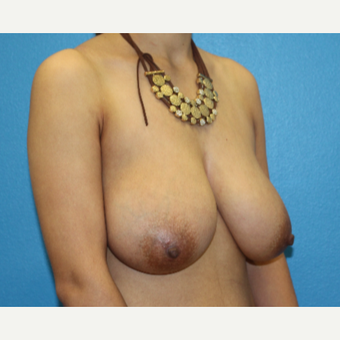 25-34 year old woman treated with Breast Reduction before 3091335