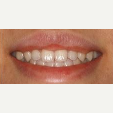18-24 year old man treated with Lip Lowering after 3027691