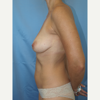 41 year old woman treated with Breast Fat Transfer and Breast Lift before 3585815