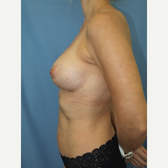 41 year old woman treated with Breast Fat Transfer and Breast Lift after 3585815