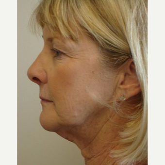55-64 year old woman treated with Facelift before 3266344