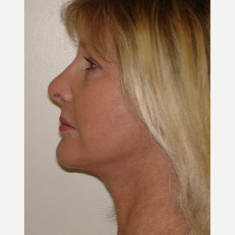 55-64 year old woman treated with Facelift after 3266344