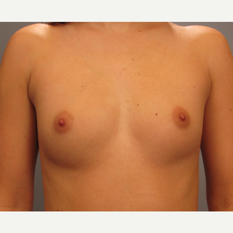 25-34 year old woman treated with Endo-Axillary Breast Augmentation before 3423883