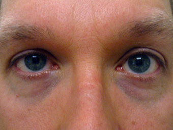 45-54 year old man treated with Ptosis Surgery