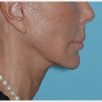 62 year old woman underwent revision facelift after 3730798